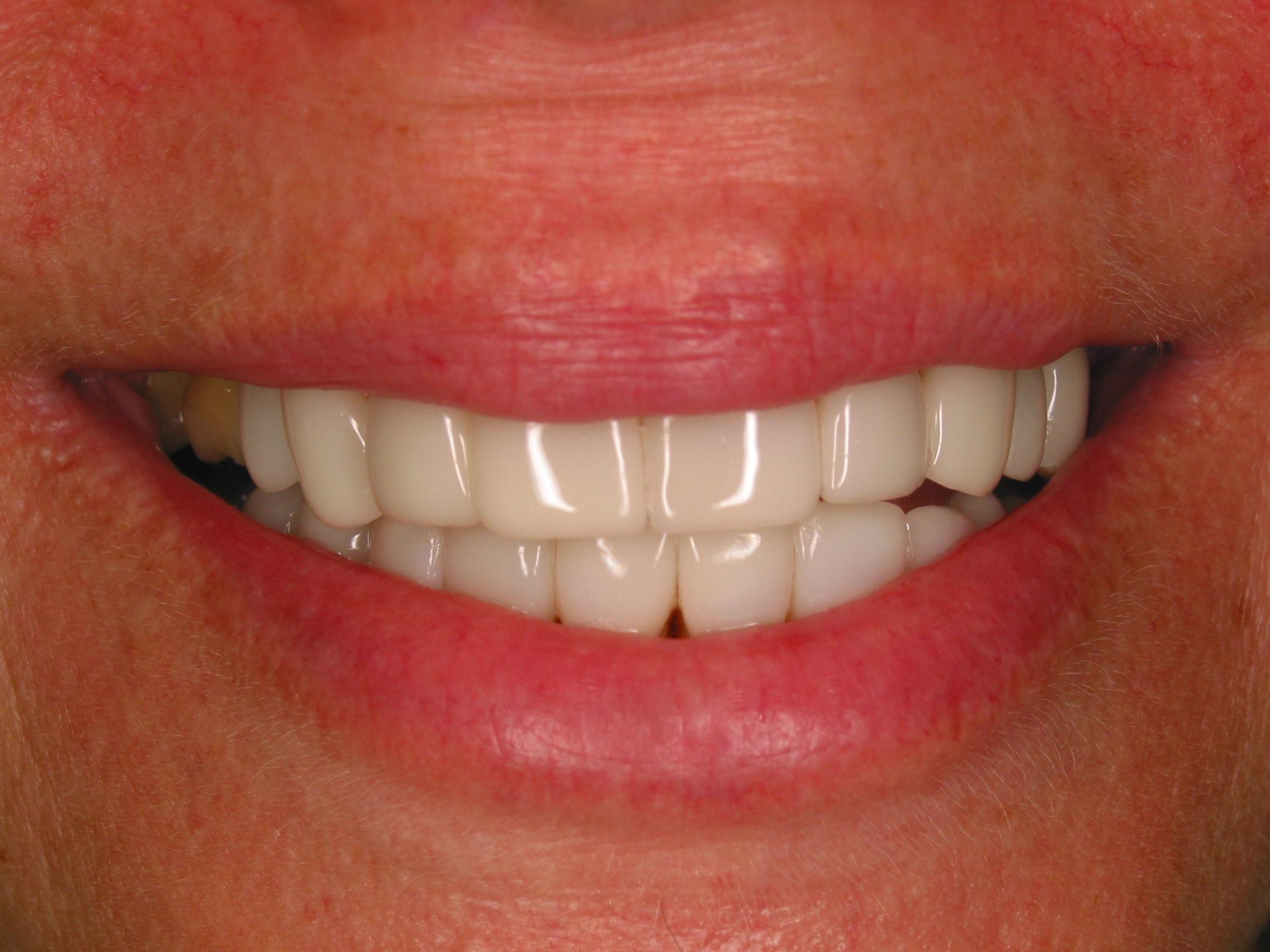 Glamsmile For Gappy Teeth Gallery