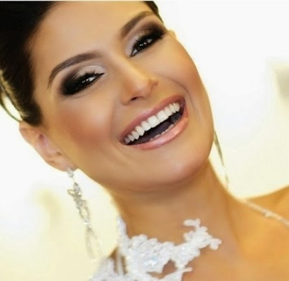 wedding smile makeover, beautiful smile