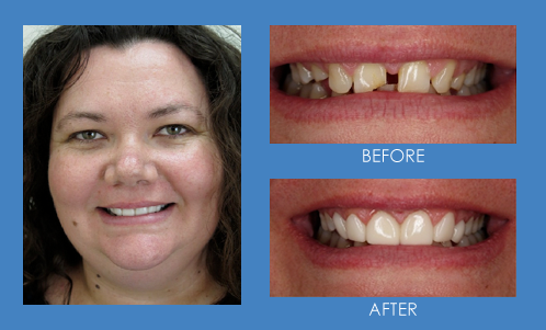 Before and after smile transformation with GlamSmile porcelain veneers - female