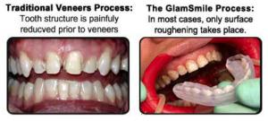 GlamSmile Porcelain Veneers process