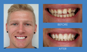Before and after smile transformation with GlamSmile porcelain veneers - male